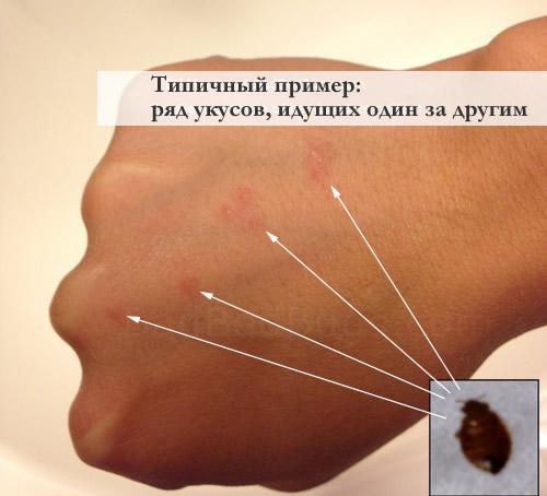 Пример укуса клопа