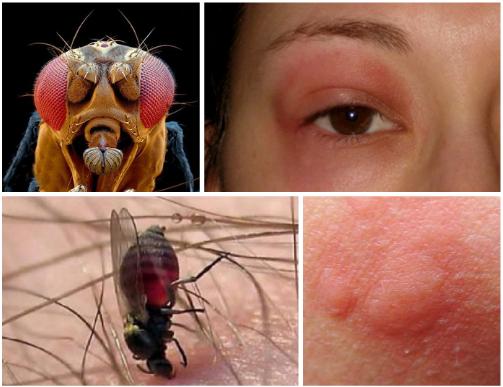 супрастин против аллергии на коже